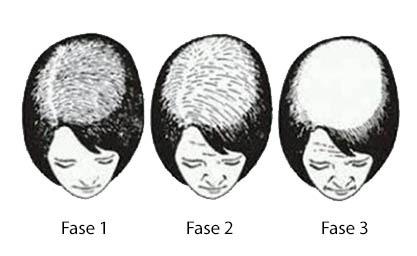 Haartransplantaties bij Haaruitval
