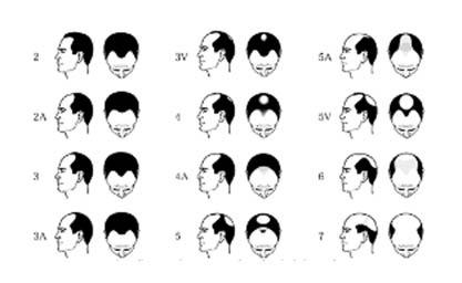 Haartransplantaties - wanneer toe te passen